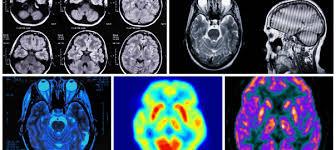 Aparat radiografii Intraorale IntraOS 70